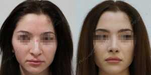 Ринопластика фото до и после — 208