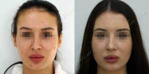 Липосакция фото до и после — 6