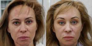 Омолаживающие операции фото до и после — 5