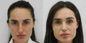 Ринопластика фото до и после — 215