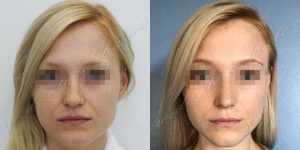 Ринопластика фото до и после — 218
