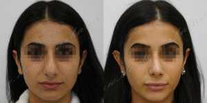 Ринопластика фото до и после — 220