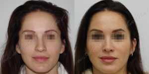 Ринопластика фото до и после — 223