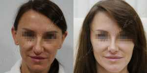 Ринопластика фото до и после — 224