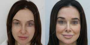 Ринопластика фото до и после — 225
