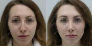 Ринопластика фото до и после — 227