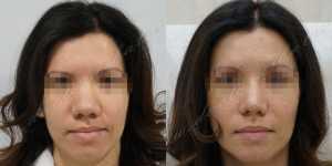 Ринопластика фото до и после — 228