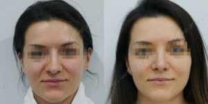 Ринопластика фото до и после — 229