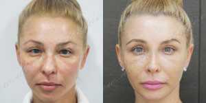 Блефаропластика фото до и после —28