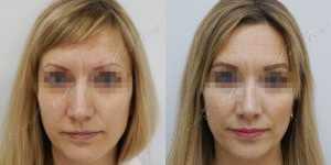 Ринопластика фото до и после — 231