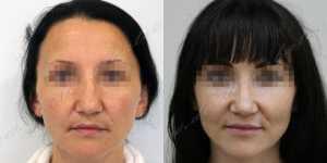 Ринопластика фото до и после — 232