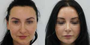 Ринопластика фото до и после — 233