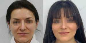 Ринопластика фото до и после — 236