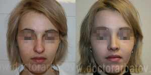 Ринопластика фото до и после — 12