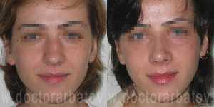 Ринопластика фото до и после — 10