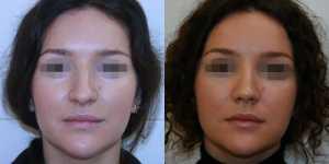 Ринопластика фото до и после — 6