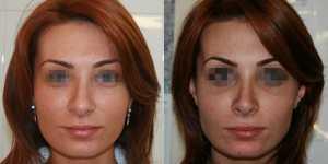 Ринопластика фото до и после — 2