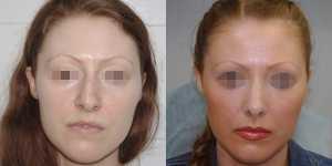 Ринопластика фото до и после — 17