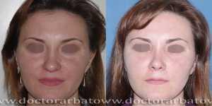 Ринопластика фото до и после — 22