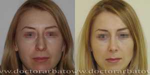 Ринопластика фото до и после — 25
