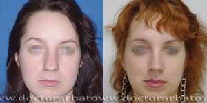 Ринопластика фото до и после — 26