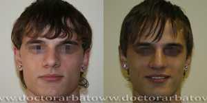 Ринопластика фото до и после — 27