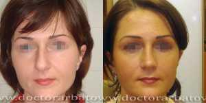 Ринопластика фото до и после — 29