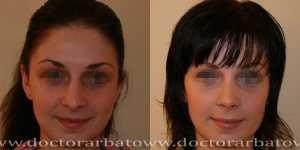 Ринопластика фото до и после — 35
