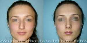 Ринопластика фото до и после — 46