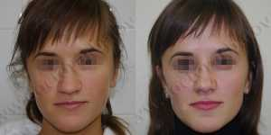 Ринопластика фото до и после — 53