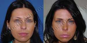 Ринопластика фото до и после — 56