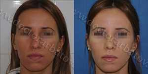 Ринопластика фото до и после — 59