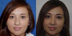 Ринопластика фото до и после — 61