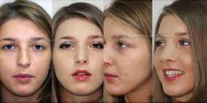 Ринопластика фото до и после — 62