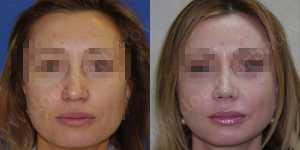 Ринопластика фото до и после — 66