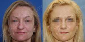 Ринопластика фото до и после — 68