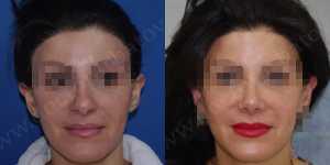 Ринопластика фото до и после — 69