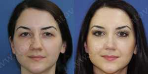 Ринопластика фото до и после — 70
