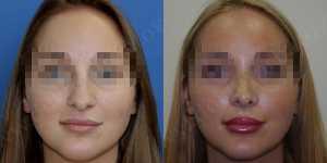 Ринопластика фото до и после — 71