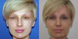 Ринопластика фото до и после — 73