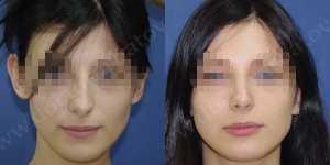 Ринопластика фото до и после — 74