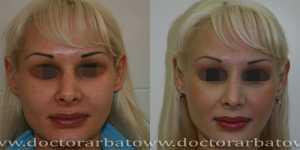 Ринопластика фото до и после — 84