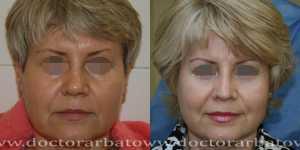 Ринопластика фото до и после — 86