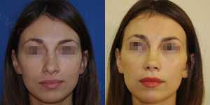Ринопластика фото до и после — 87