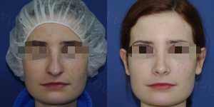 Ринопластика фото до и после — 96