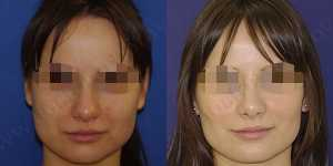 Ринопластика фото до и после — 97