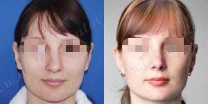 Ринопластика фото до и после — 104