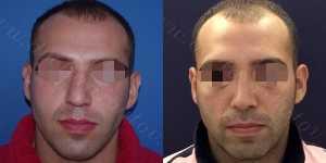 Ринопластика фото до и после — 113