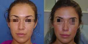 Ринопластика фото до и после — 116