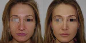 Ринопластика фото до и после — 123